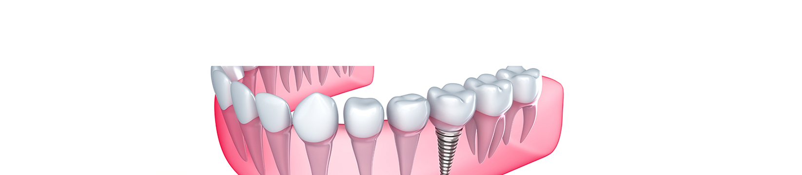 dental implants saint albans