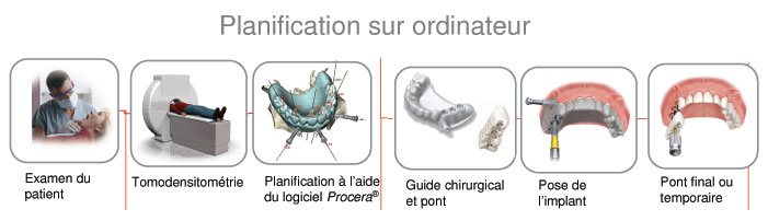 examen en implantologie dentaire
